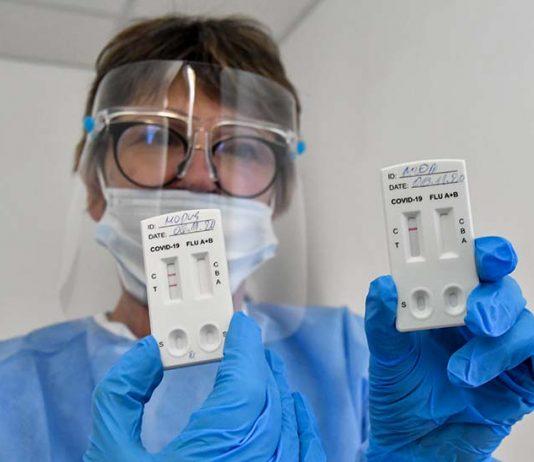 antigenni-testove